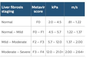 transient elastography, fibroscan, liver fibrosis staging